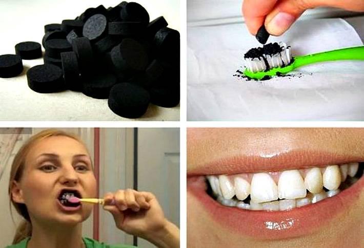 Такая желанная белоснежная улыбка: как отбелить зубы в домашних условиях?