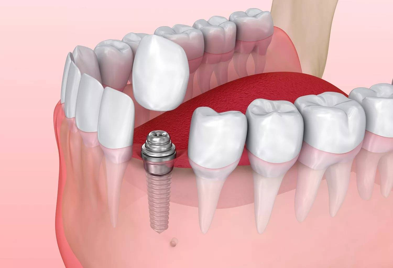 10 мифов об имплантации с немедленной нагрузкой! реально ли вставить новые зубы за 1 или 3 дня?