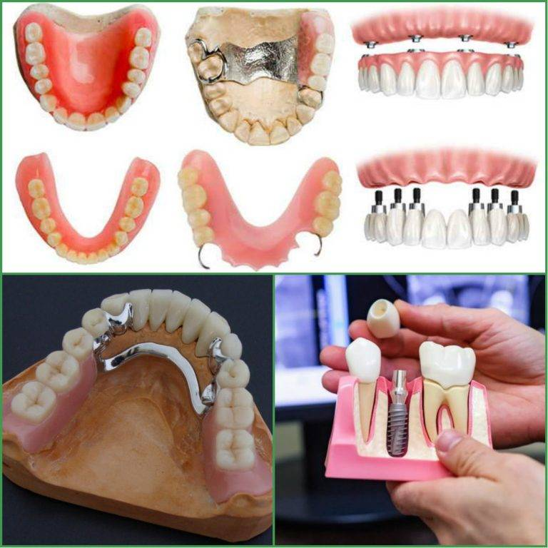 Какие зубы лучше вставить, обзор цен