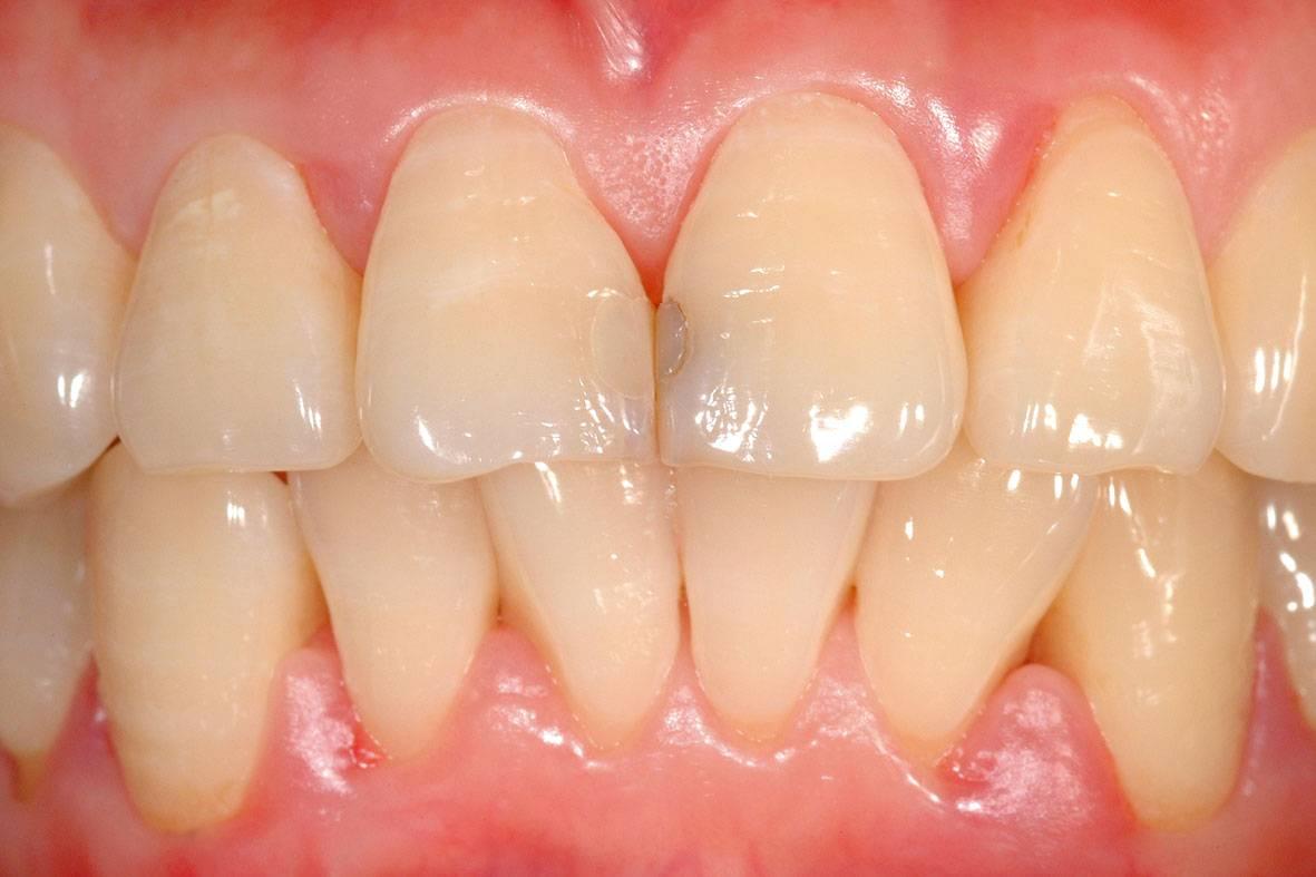 Почему чернеют зубы у взрослых и детей изнутри и снаружи, что делать
