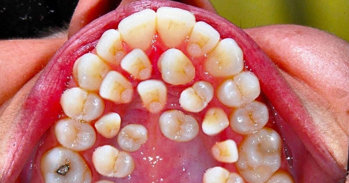 Зуб сгнил внутри. лечение или удаление: что делать, если гниют зубы изнутри до десны или корня, какими будут последствия