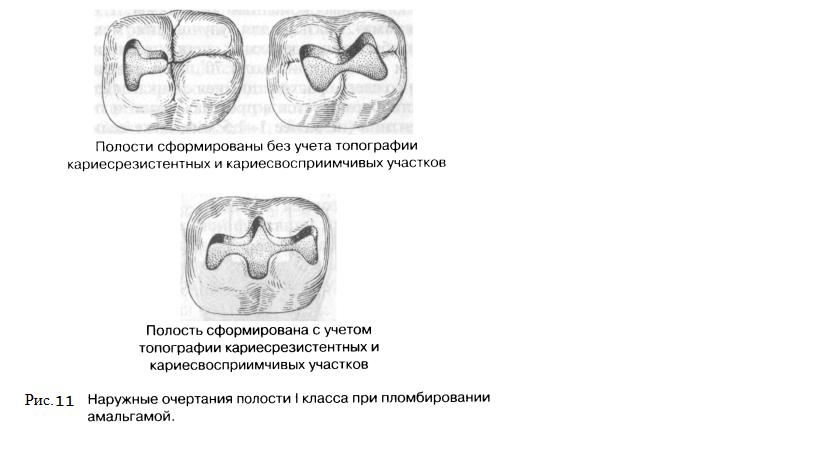 Принципы и этапы препарирование кариозных полостей. - презентация