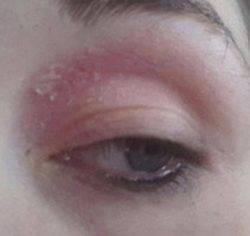 Шелушится кожа под глазами: причины шелушения, способы лечения