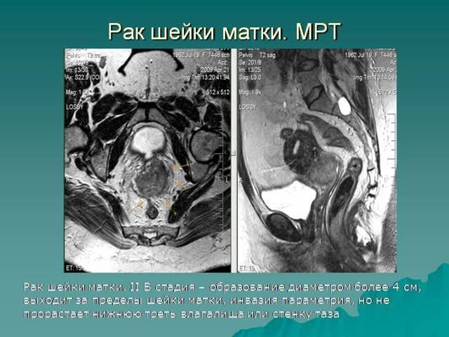 Мрт органов малого таза у мужчин с контрастированием и без контраста – что показывает