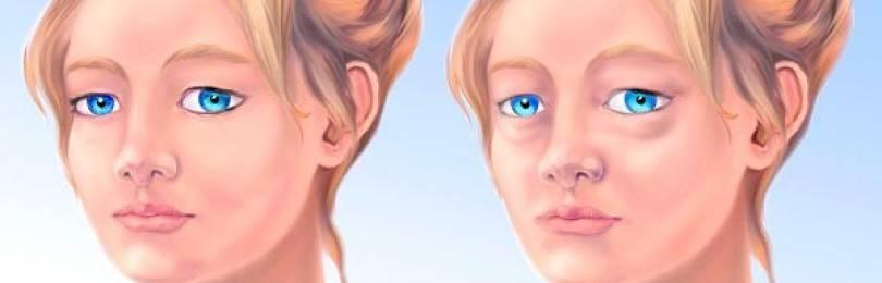 Причины, по котором лицо может чесаться и опухать