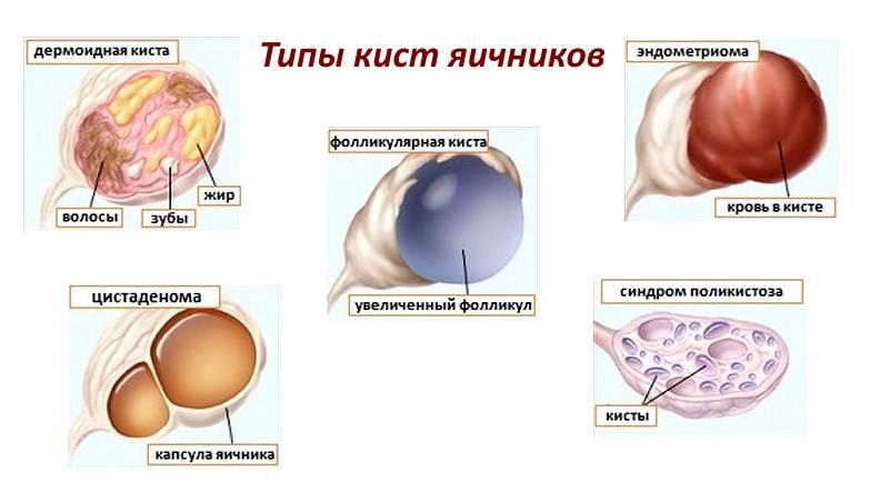 Киста левого яичника: виды, чем опасна, причины образования, симптомы и лечение