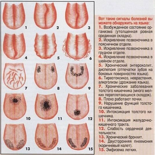 Отпечатки зубов на языке по бокам причины возникновения