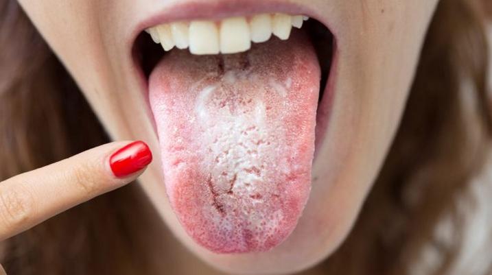 Коричневый налет на языке у взрослых: причины