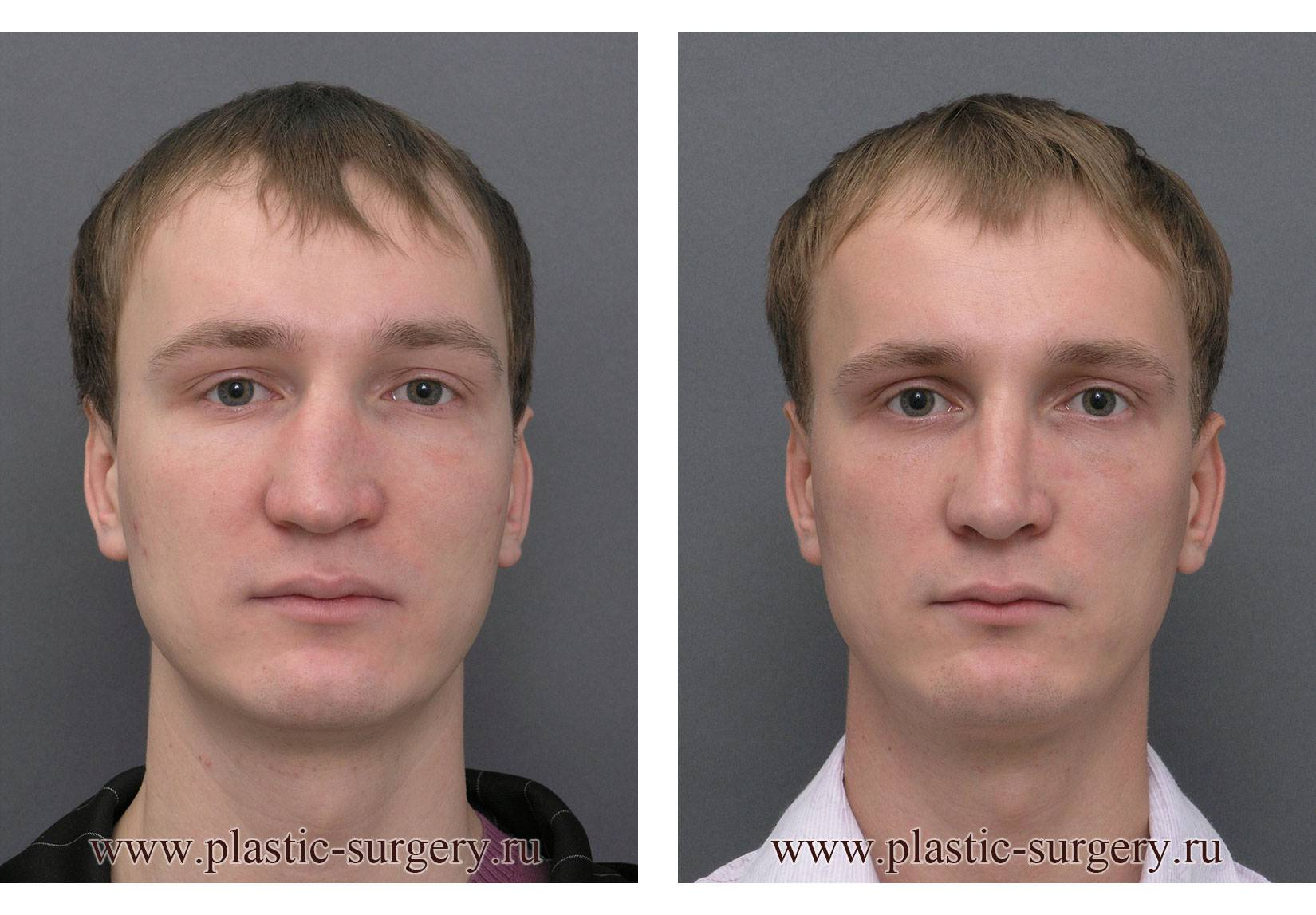 Кривой нос: способы исправить дефект