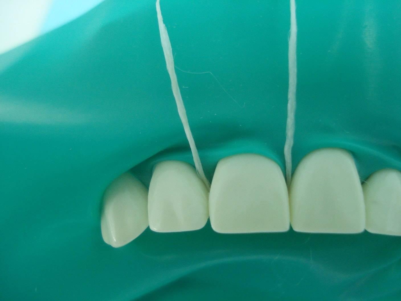 Коффердам в стоматологии (раббердам): что это такое?