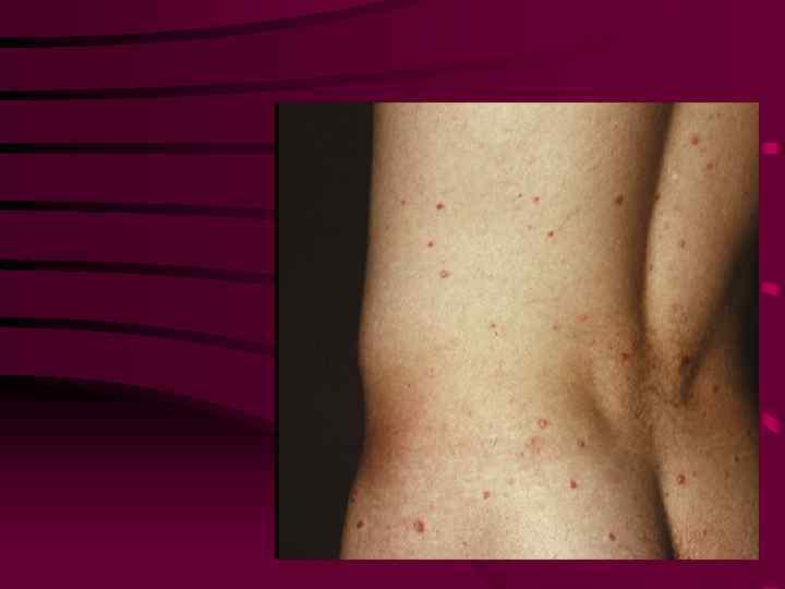 Симптомы, признаки сифилиса у женщин и мужчин. причины и как лечить сифилис