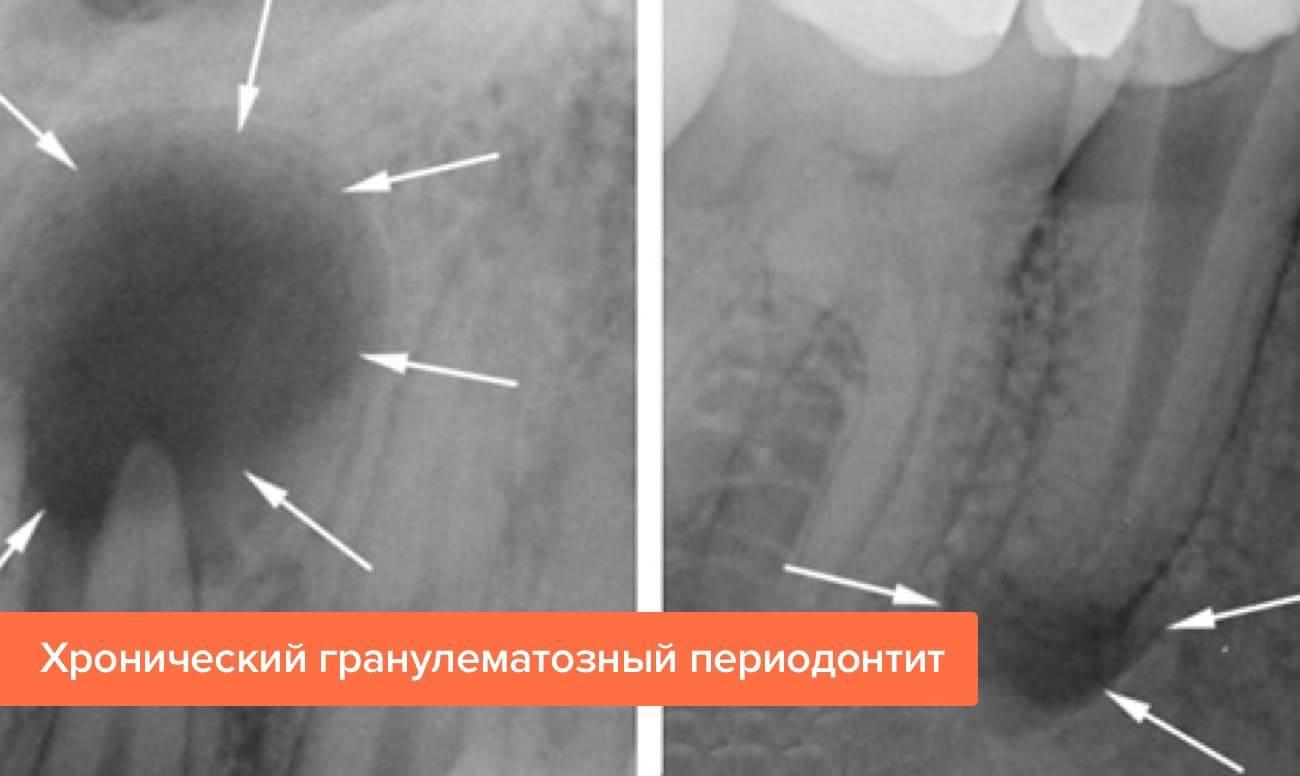 Периодонтит: причины, диагностика, лечение
