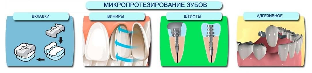 Выбор между коронкой и имплантом что лучше?