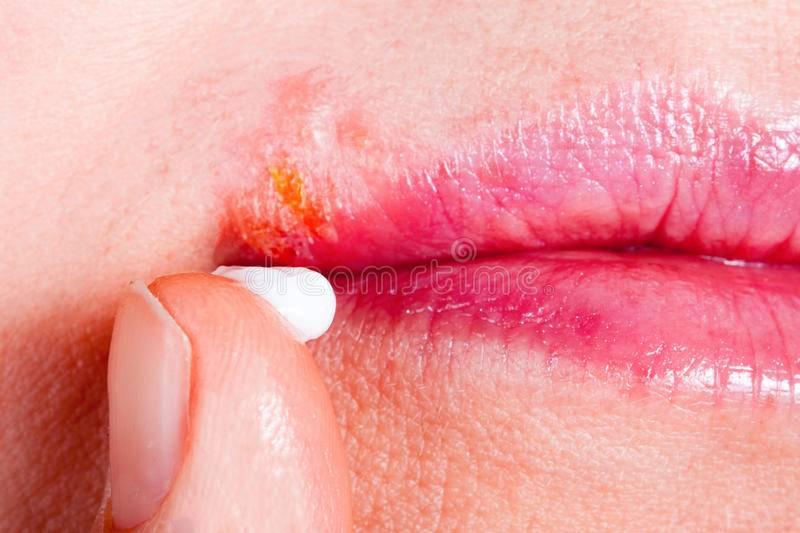 """""""симптомы герпеса в интимной зоне у женщин, опасность и лечение заболевания"""""""