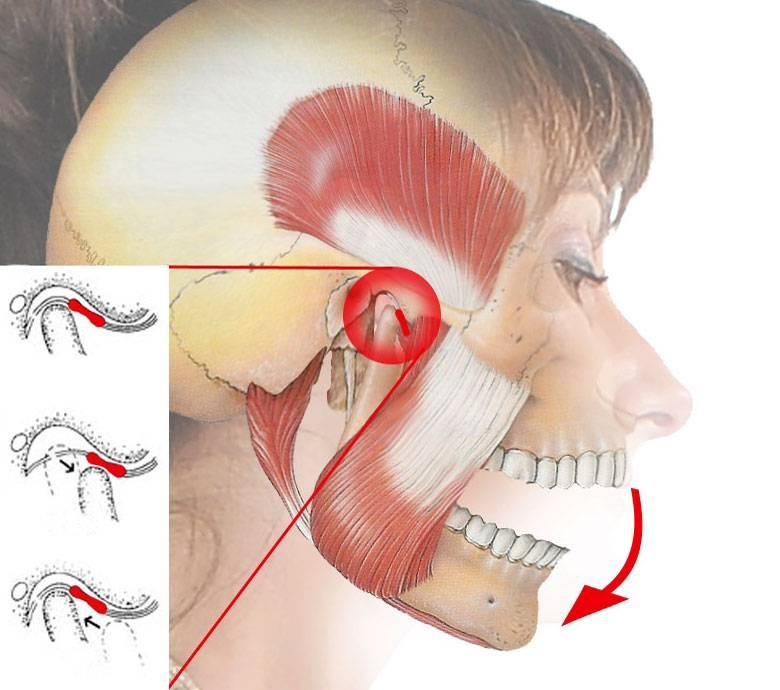 Понятие, симптомы и лечение артроза челюстно-лицевого и височно-нижечелюстного сустава (внчс): какой врач поможет?
