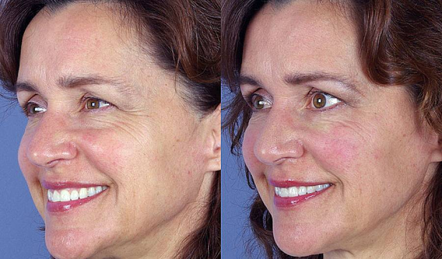 Ботулотоксин в косметологии: применять нельзя бояться