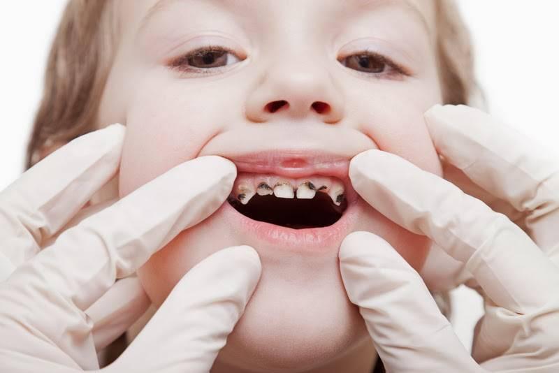 Причины порчи зуба под коронкой. что делать, если он сгнил?