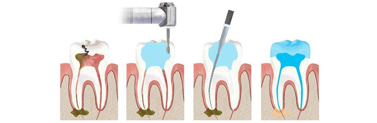 Можно ли убить зубной нерв в домашних условиях и стоит ли это делать?