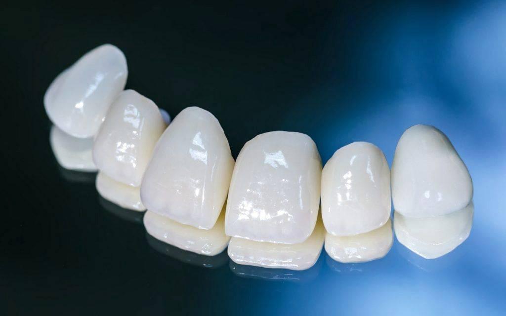 Фарфоровые коронки – лучший эстетический вариант протезирования передних зубов