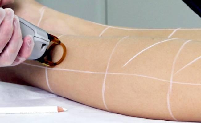 Можно ли делать лазерную эпиляцию летом?