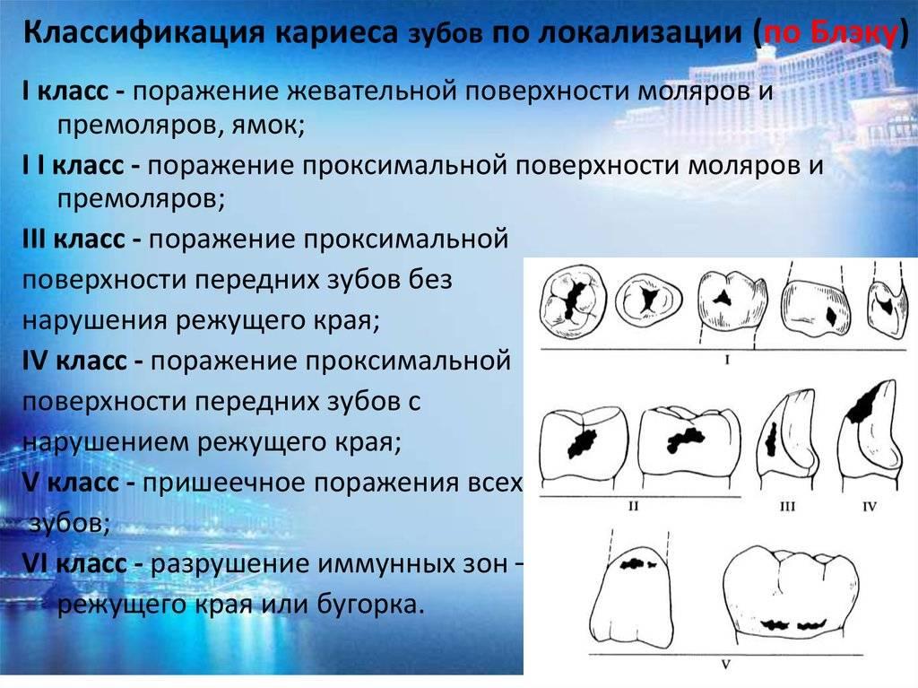Классификация кариеса по блэку