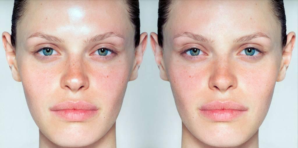 Как быстро избавиться от жирного блеска на лице в домашних условиях