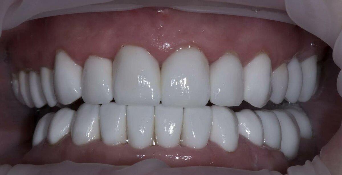 Виниры или коронки, что лучше на передние зубы? мнение экспертов, отзывы пациентов, фото до и после