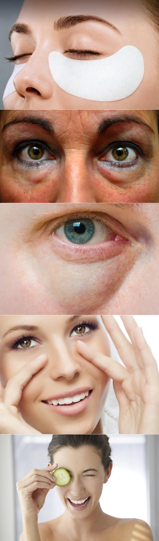 Как убрать отеки под глазами: самые эффективные способы