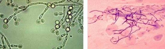 Мицелий в мазке на флору