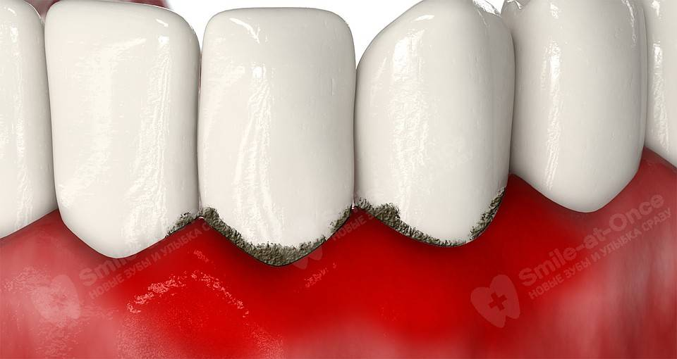 Почему кровоточит десна при чистке зубов
