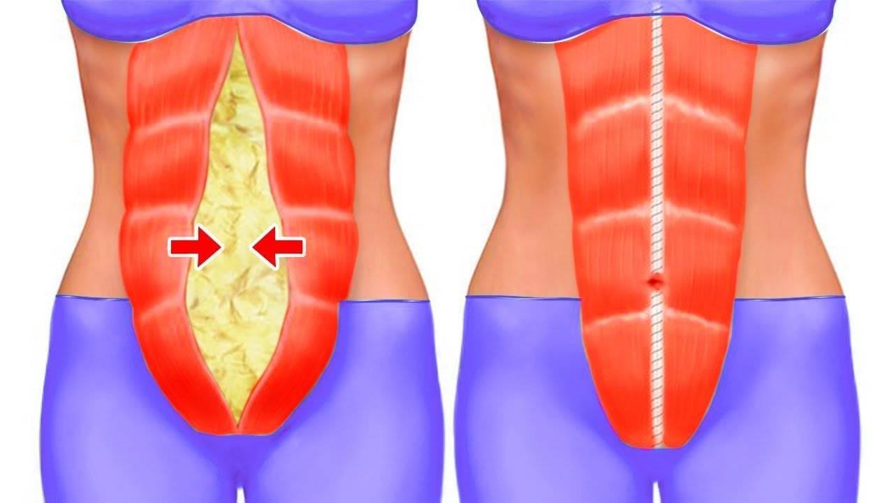 Как убрать подкожный жир с живота быстро и эффективно