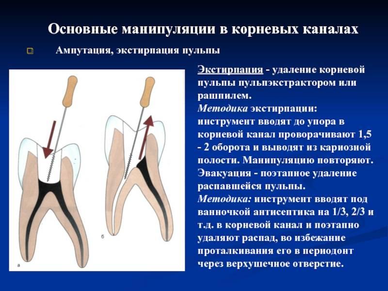 Зубосохраняющая операция гемисекция: показания, этапы, отзывы