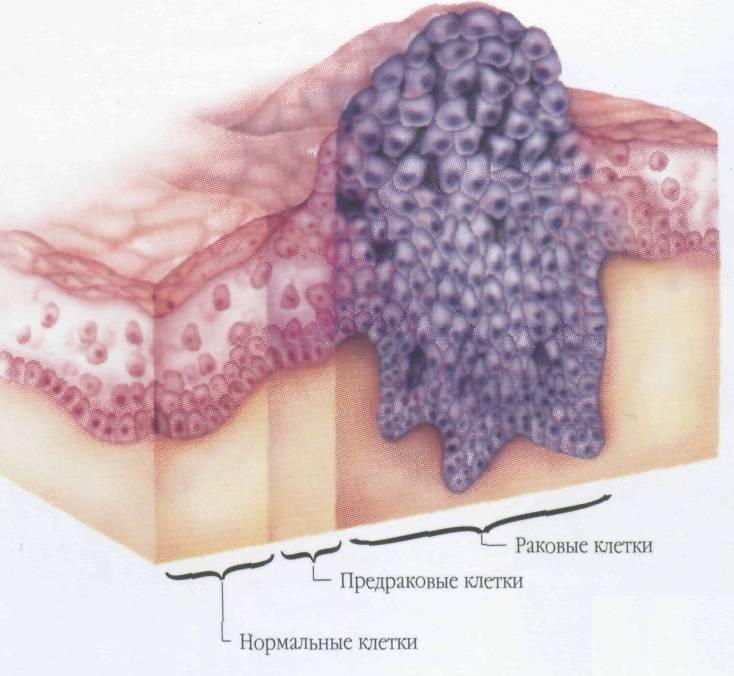 Наросты на коже — виды и способы лечения