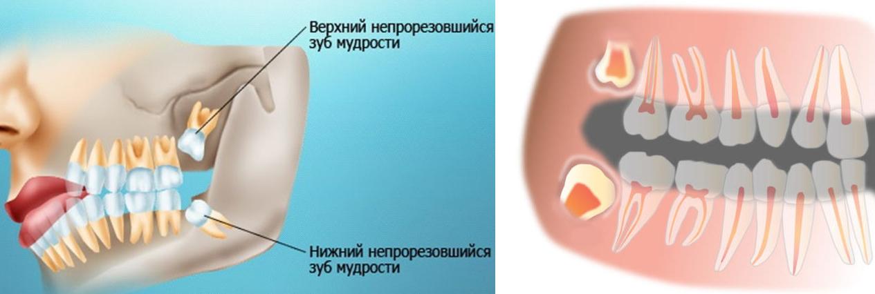 Болит передний верхний зуб и десна над ним