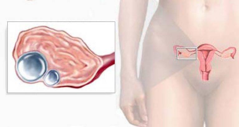 Симптомы и лечение ретенционной кисты яичника