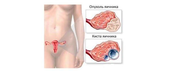 Как распознать первые симптомы и признаки рака матки на ранней стадии?