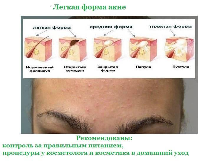 Инструкция для аллергиков: как избавиться от сыпи на лице?