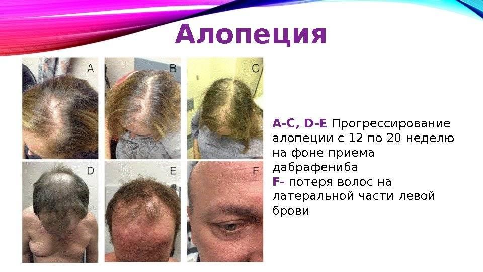 Очаговое выпадение волос у ребенка причины. алопеция у детей: причины появления и методы борьбы с проблемой.