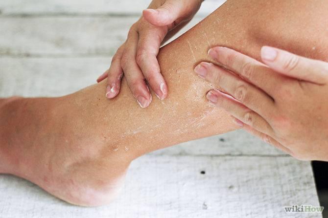 Шелушение кожи ног