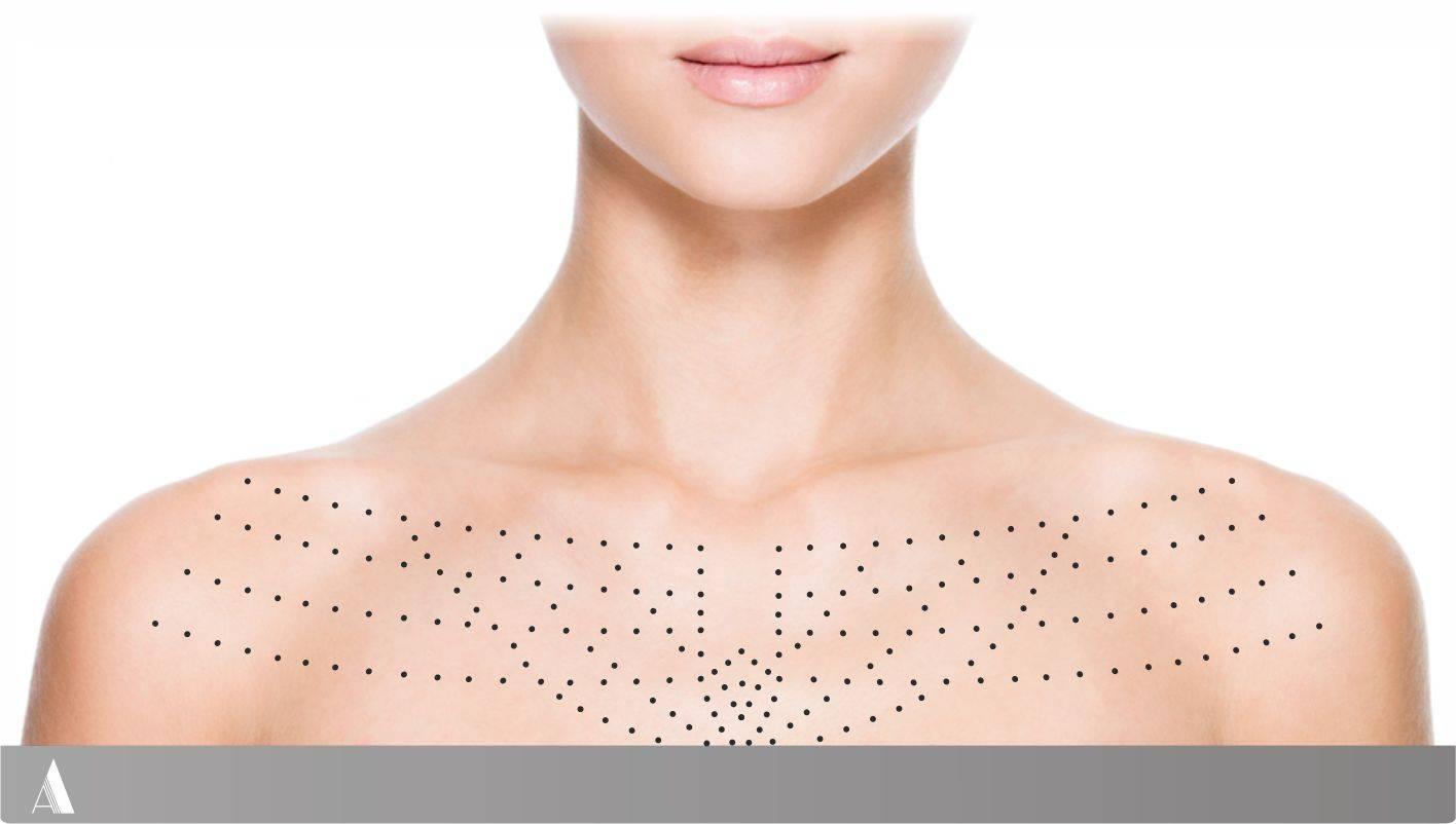 Как происходит увеличение груди гиалуроновой кислотой