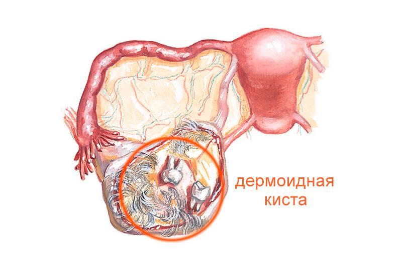 Как распознать симптомы кисты на яичнике?