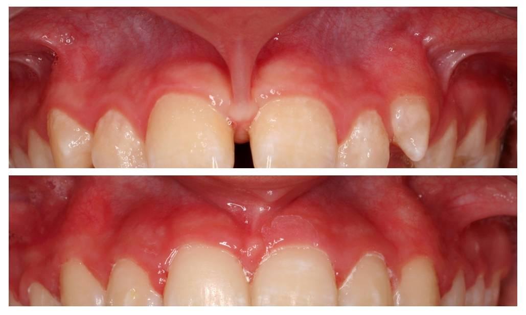 4 эффективных вида пластики уздечки губы