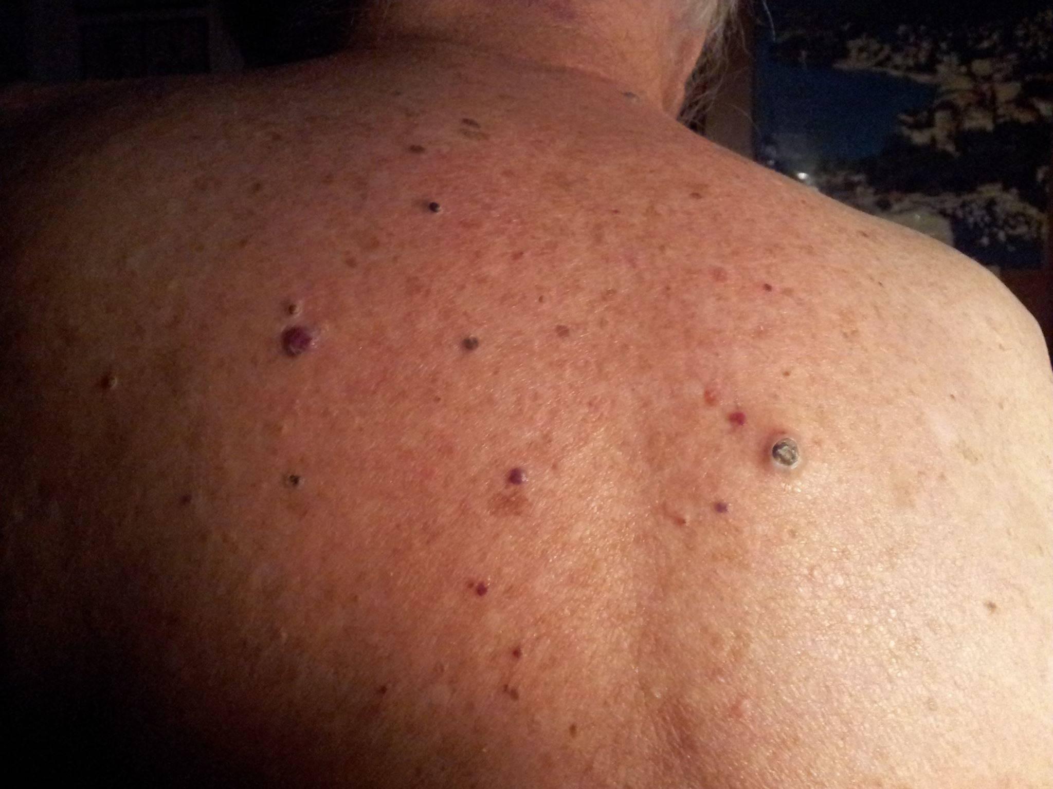 Как избавиться от черных точек на груди