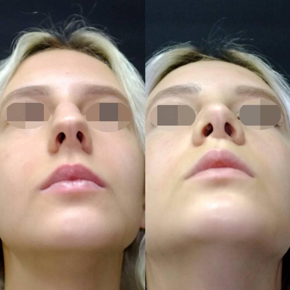 Подслизистая резекция носовой перегородки: что это такое