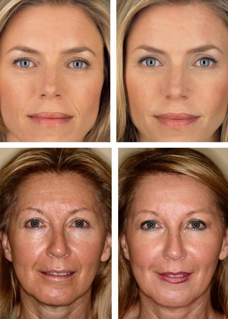 Что такое мезотерапия лица, как это работает и каких успехов можно добиться: фото до и после уколов красоты