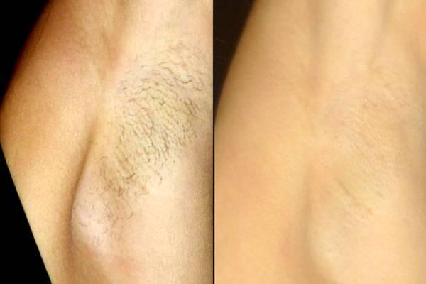 Длина волос для шугаринга глубокого бикини и ног