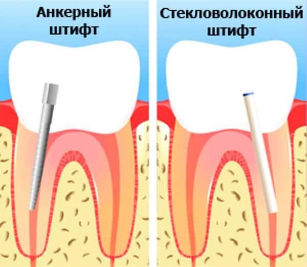 Сломался зуб: причины и методы устранения дефекта