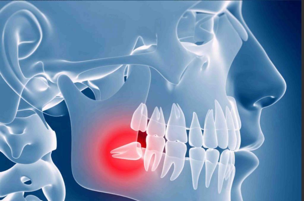 Почему болит зуб мудрости и как снять боль