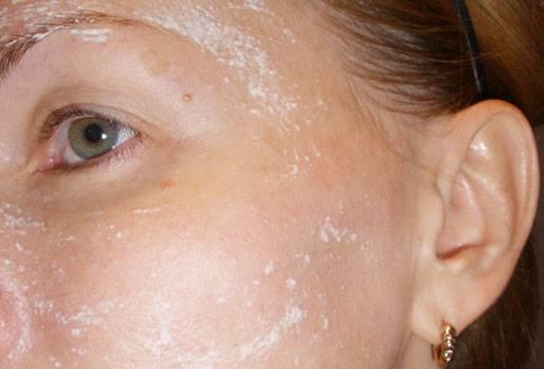 Яблочный уксус для ухода за лицом и лечения кожи