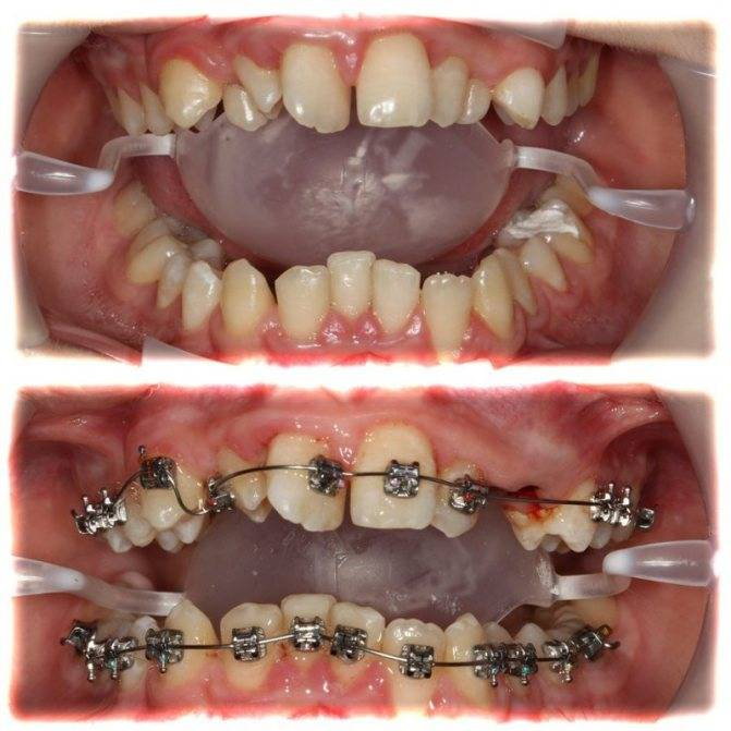 Скобы для зубов: особенности и отличие от брекетов